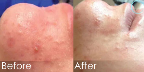 Hydrafacial Before & After Pictures in Daytona beach, FL