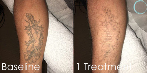 Laser Tattoo Removal Before and After Before & After Pictures in Daytona beach, FL