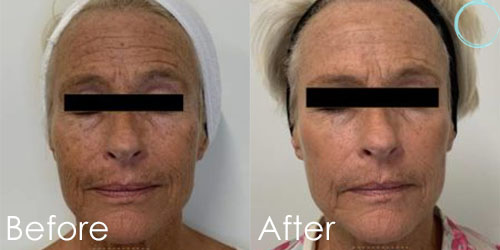 IPL Photofacial Before and After Before & After Pictures in Daytona beach, FL