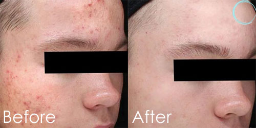 Chemical Peels Before and After Pictures in Daytona Beach, FL
