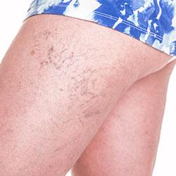 Skin Treatments in Daytona Beach, FL