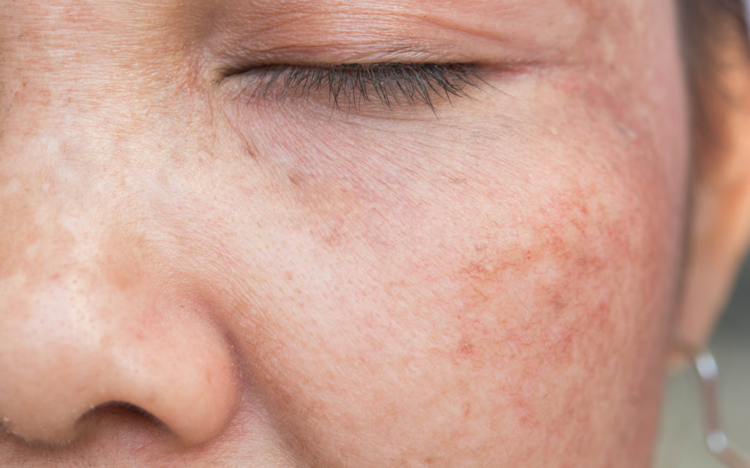 Everything You Need to Know About Rosacea